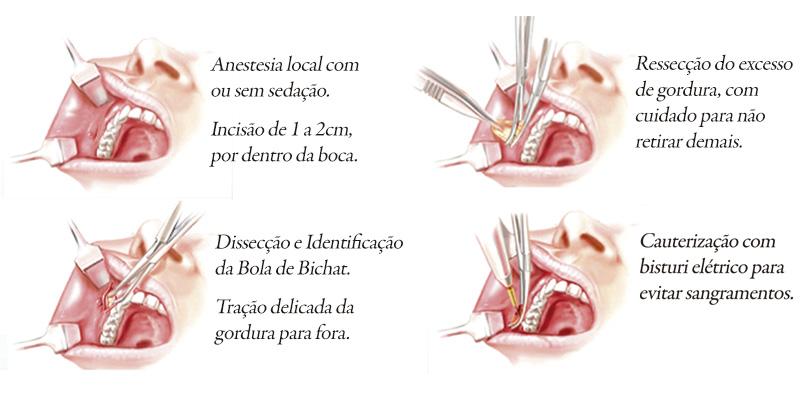 Bichectomia Etapas