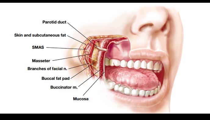 bichectomia 1